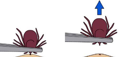 Clipart image of tick removal with tweezers, from CDC.gov.
